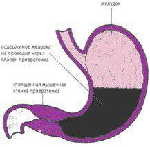 Осложнения язвенной болезни – стеноз привратника