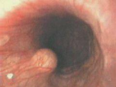 Осложнения ГЭРБ — пищевод Барретта и рак пищевода