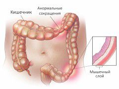 СРК – синдром раздраженного кишечника