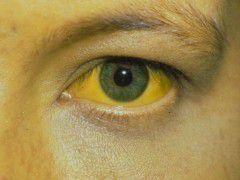 Симптомы хронического гепатита – желтуха, темная моча и обесцвеченный кал