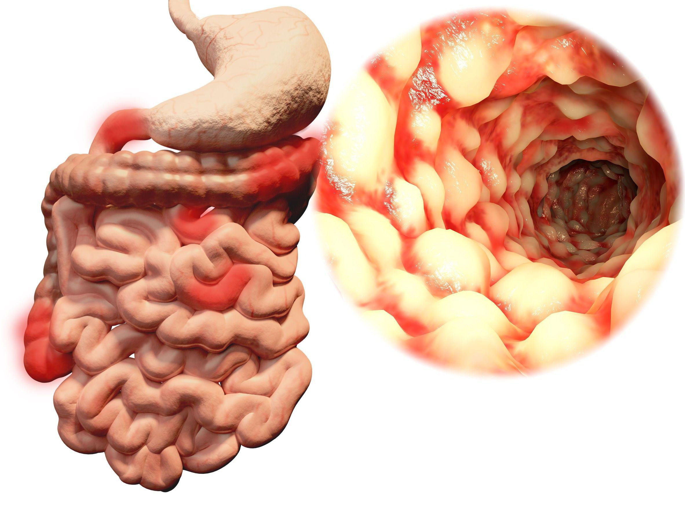 Заболевания тонкого кишечника