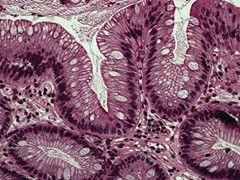 Пищевод Баррета под микроскопом
