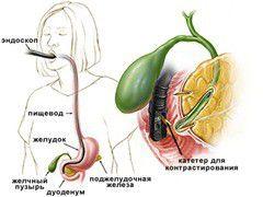 Эндоскопическая ретроградная панкреатохолангиография