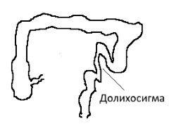 Долихосигма