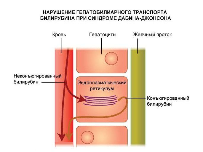 Синдром Дабина-Джонсона