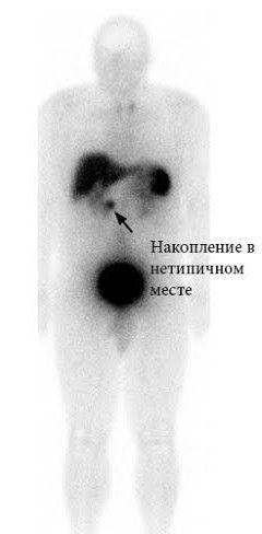 Накопление соматостатина в нетипичном месте