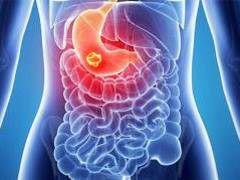 Нейроэндокринная опухоль желудка