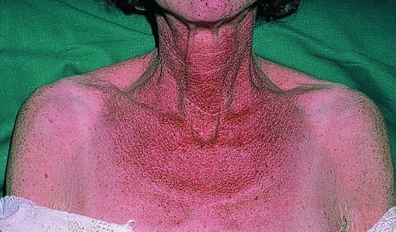 Карциноидный синдром фото