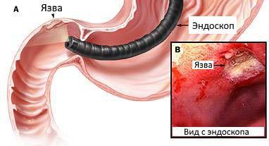Диагностика язвенной болезни двенадцатиперстной кишки